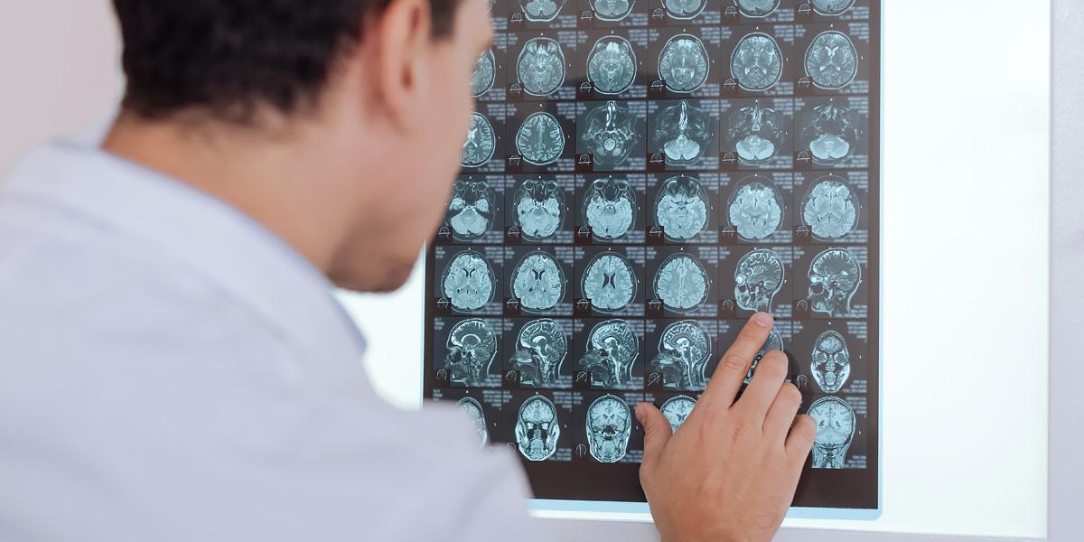 MCH&HS MRI scan